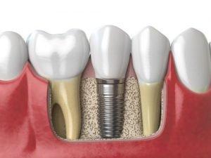 Dental Implants Haverhill MA