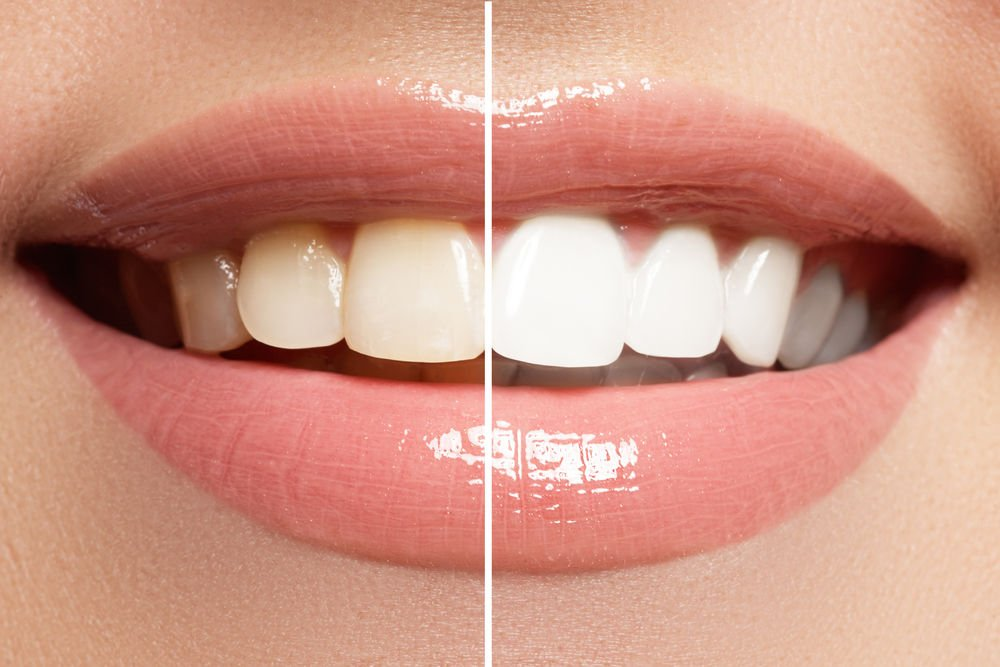 teeth whitening haverhill