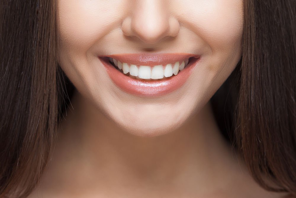 in-office teeth whitening haverhill ma
